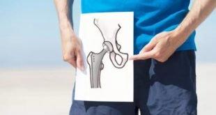 Замена тазобедренного сустава, цена моделей протезов